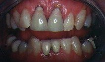 Gum Recession Above Crowns